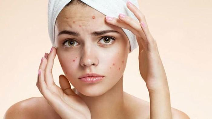 Tips Skincare Routine untuk Kulit Berminyak dan Berjerawat